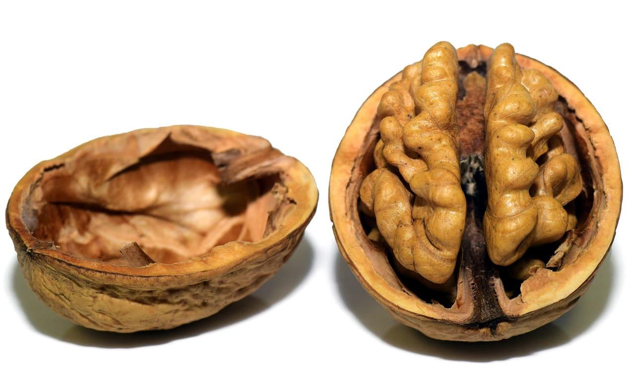 cerebro de mujeres y hombres